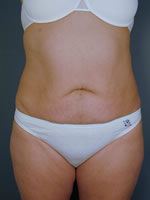 abdominal waist01 after Before & After Liposuctions Pictures