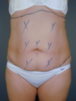abdominal waist01 before Before & After Liposuctions Pictures