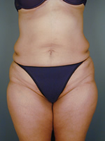 abdominal waist03 after Before & After Liposuctions Pictures