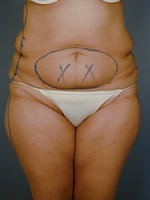 abdominal waist03 before Before & After Liposuctions Pictures