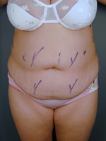 abdominal waist05 before Before & After Liposuctions Pictures