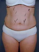 abdominal waist06 before Before & After Liposuctions Pictures