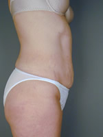abdominal waist09 after Before & After Liposuctions Pictures