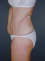 abdominal waist10 before Before & After Liposuctions Pictures