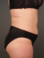 abdominal waist11 after Before & After Liposuctions Pictures