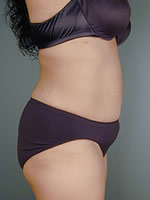 abdominal waist12 after Before & After Liposuctions Pictures