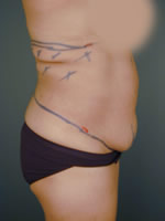 abdominal waist12 before Before & After Liposuctions Pictures