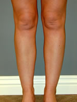 calves ankles01 after Before & After Liposuctions Pictures