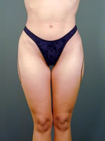 hips thighs01 before Before & After Liposuctions Pictures
