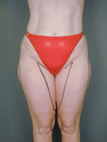 hips thighs02 before Before & After Liposuctions Pictures