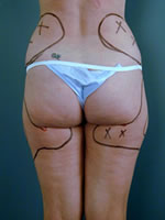 hips thighs10 before Before & After Liposuctions Pictures
