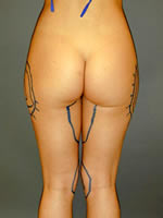 hips thighs12 before Before & After Liposuctions Pictures