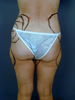 hips thighs14 before Before & After Liposuctions Pictures