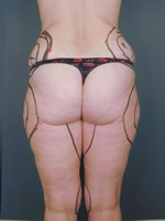 hips thighs16 before Before & After Liposuctions Pictures