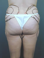 hips thighs18 before Before & After Liposuctions Pictures