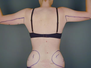 liposuction arm07 before Before & After Liposuctions Pictures