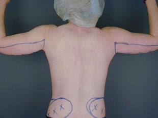 liposuction arm08 before Before & After Liposuctions Pictures