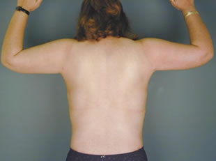 liposuction back01 after Before & After Liposuctions Pictures