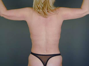 liposuction back02 after Before & After Liposuctions Pictures