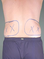 liposuction back03 before Before & After Liposuctions Pictures