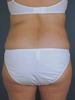 liposuction back04 after Before & After Liposuctions Pictures
