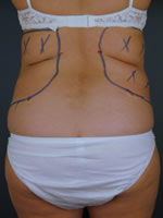 liposuction back04 before Before & After Liposuctions Pictures
