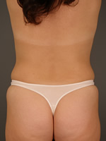 liposuction back06 after Before & After Liposuctions Pictures