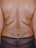 liposuction back07 after Before & After Liposuctions Pictures