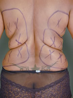 liposuction back07 before Before & After Liposuctions Pictures