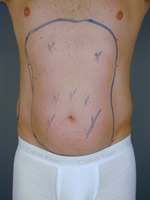 male liposuction01 before Before & After Liposuctions Pictures