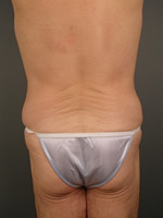 male liposuction06 after Before & After Liposuctions Pictures