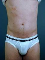 male liposuction07 after Before & After Liposuctions Pictures