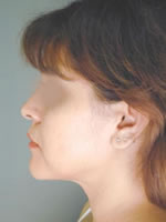 neck liposuction01 after Before & After Liposuctions Pictures