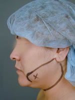 neck liposuction01 before Before & After Liposuctions Pictures