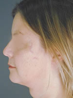 neck liposuction02 after Before & After Liposuctions Pictures