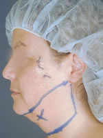 neck liposuction02 before Before & After Liposuctions Pictures