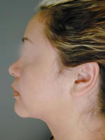 neck liposuction04 after Before & After Liposuctions Pictures