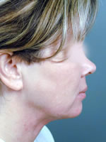 neck liposuction05 after Before & After Liposuctions Pictures