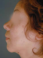 neck liposuction07 after Before & After Liposuctions Pictures
