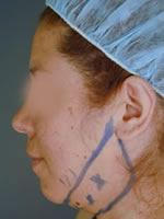neck liposuction07 before Before & After Liposuctions Pictures