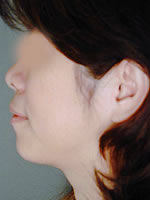 neck liposuction08 after Before & After Liposuctions Pictures