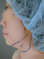 neck liposuction08 before Before & After Liposuctions Pictures