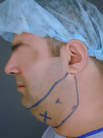 neck liposuction09 before Before & After Liposuctions Pictures