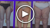 Dr. Amron's Lipedema Patient Interview FOX 11 Los Angeles
