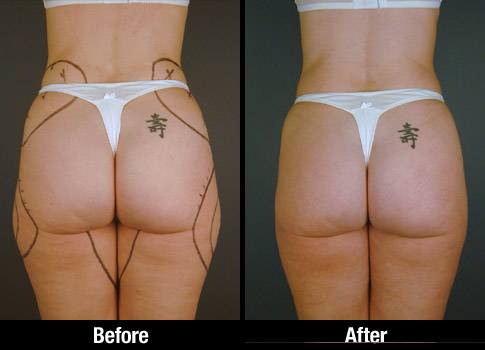 Hips Liposuction Before and After Photos