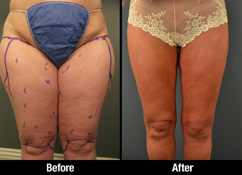 Click here to see more Outer Thigh Liposuction photos