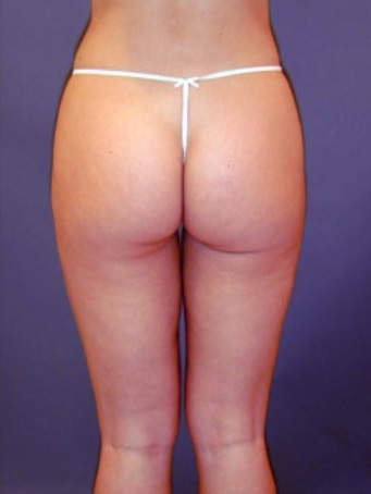 Dr. Amron - Beverly Hills - Mini Liposuction After