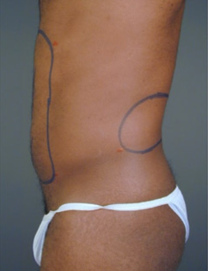 Dr. Amron - Beverly Hills - Mini Liposuction Before