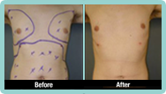 Male Liposuction Gallery