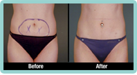 Mini Liposuction Gallery